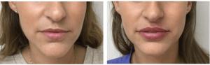 לפני אחרי טיפול שפתיים שרון דוידסון (2) (1)