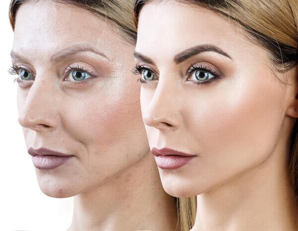 פיסול פנים ומילוי שקעים מתחת לעיניים: המדריך המלא