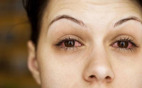 מחלות עיניים דלקתיות: זיהוי וטיפול