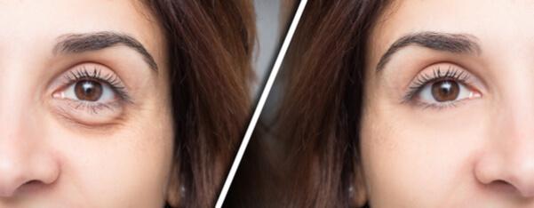 עפעפיים תחתונות לפני ואחרי