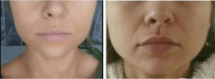 לפני ואחרי ברוקסיזם