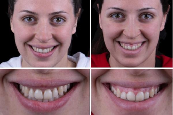 הטיפולים השונים לחיוך חושף חניכיים (גאמי סמייל)