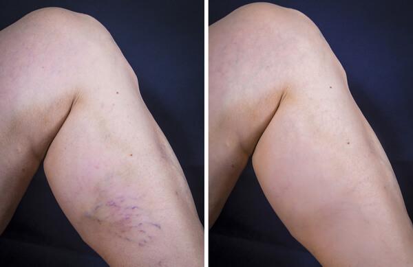 אחרי | לפני טיפול בורידים ברגליים