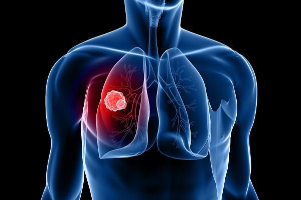הטיפול החדש בסרטן ריאות באמצעות תרופות אימונותרפיות