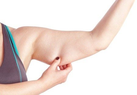 המסת שומן בזרוע