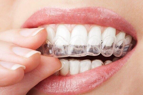 אסתטיקת הפנים והשיניים: לחיוך מושלם