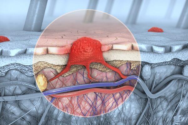 מלנומה בשלב המוקדם: הטיפול החדשני למניעת הישנות המחלה