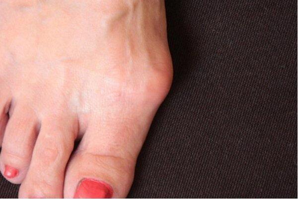 טיפול לא ניתוחי בהלוקס ולוגס: הסוף לכאבים