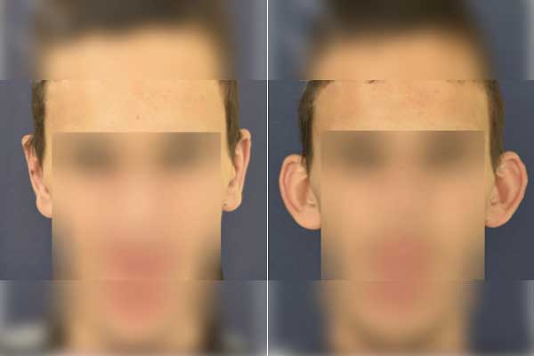 ניתוח הצמדת אוזניים