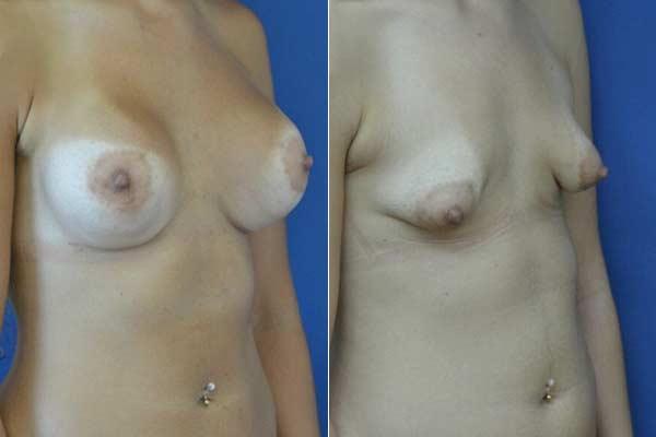 ניתוח חזה טובולרי