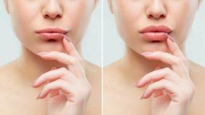 עיבוי ועיצוב שפתיים