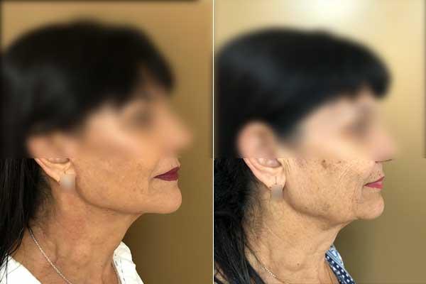 ניתוח מתיחת פנים