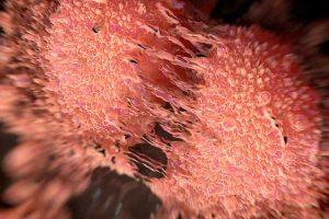 טיפול בסרטן הערמונית