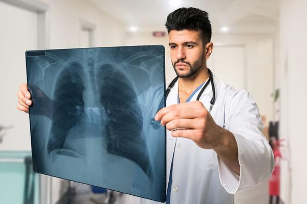 מחלות פיברוטיות של הריאה: המדריך המלא