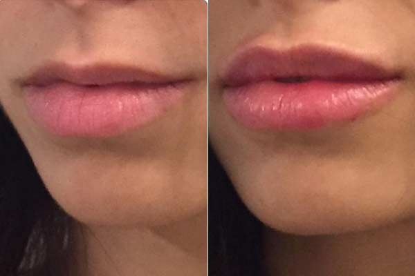 עיצוב שפתיים
