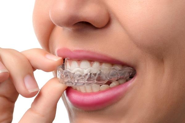 יישור שיניים שקוף: המהפך של נדין