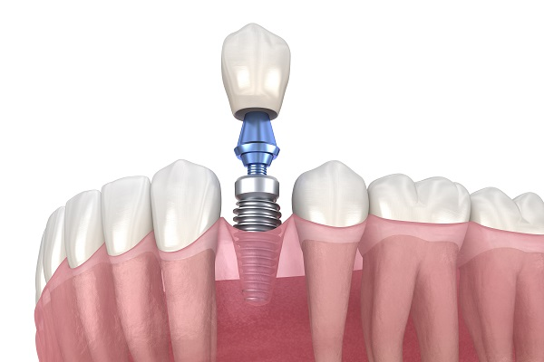 השתלת שיניים ביום אחד - הדרך העדינה והמהירה להשבת איכות החיים