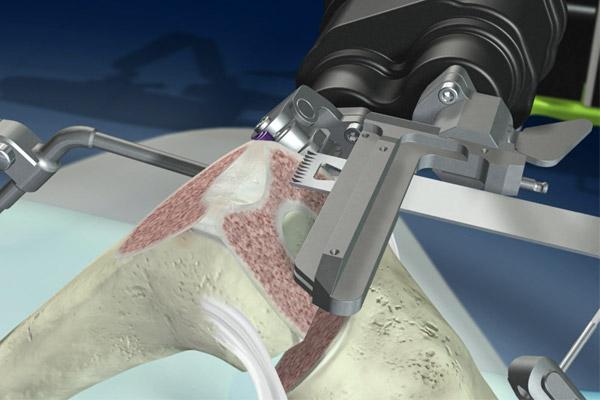 החלפת מפרק ברך באמצעות רובוט