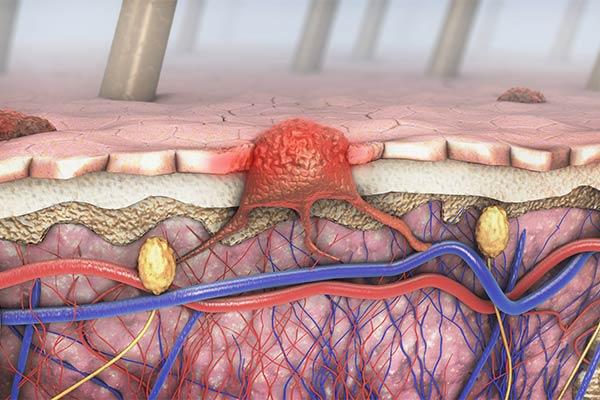 טיפולים חדשים במלנומה מתקדמת