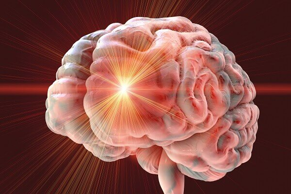 החידושים בתחום צנתורי המוח