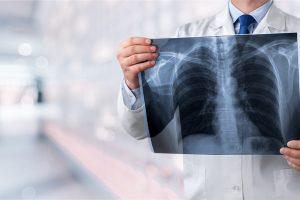 מיקרוליטיאזיס אלבאולרי ריאתי (PAM)