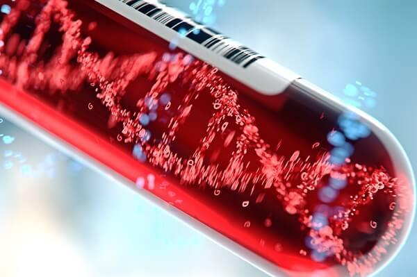 אבחון מוקדם של מחלת הגושה יחזיר אתכם לשגרת החיים