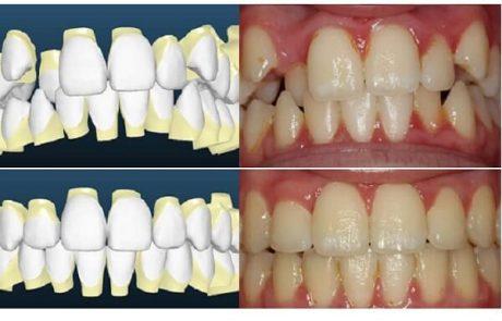 הטכנולוגיה המתקדמת ליישור שיניים: התאמה ממחושבת