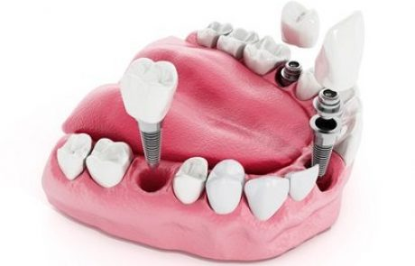 השתלות שיניים בהרדמה כללית: הדרך הקלה ביותר לעבור טיפולים מורכבים