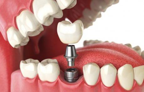 חידושים טכנולוגיים בהשתלות שיניים: פרוצדורה נטולת סיבוכים