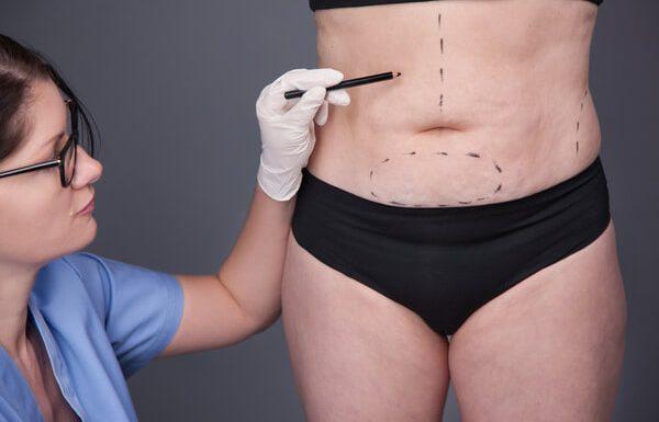 ניתוח הסרת עודפי עור לאחר ירידה במשקל