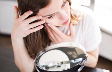 טיפולים מתקדמים בצלקות פוסט אקנה: לעור פנים חלק