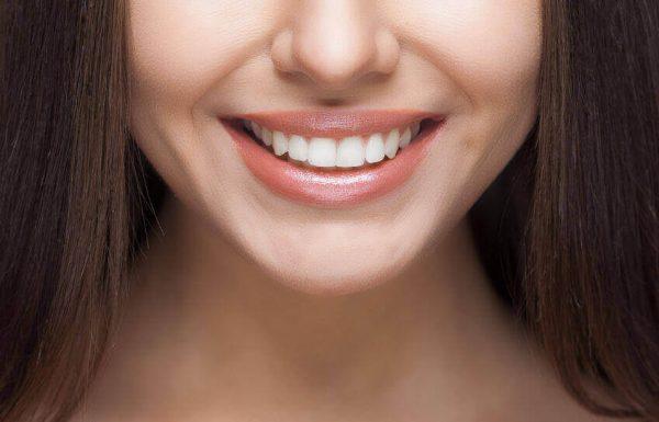 ציפויי חרסינה: הטיפול החדשני לשיפור מראה השיניים