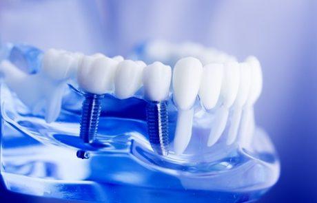 השתלת שיניים ושיקום הפה: כך עושים את זה נכון