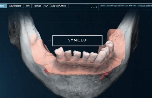 חידושים בהשתלות שיניים: הטכנולוגיה שתחזיר לך את החיוך