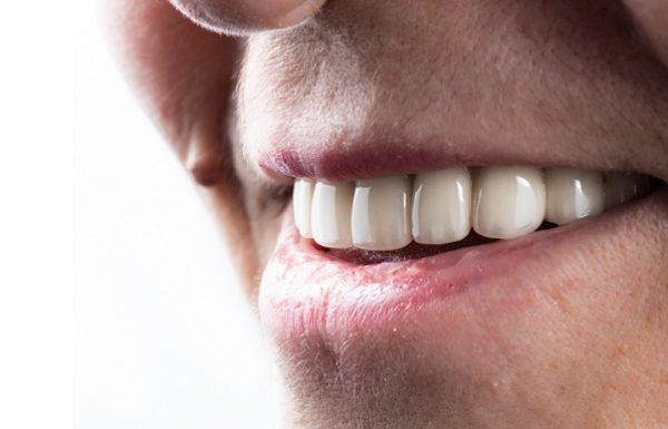 השתלת שיניים בזאלית: השיטה הייחודית