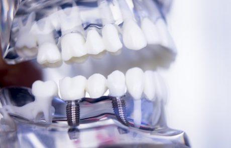 השתלת שיניים בשיטת All on 4: טיפול אחד ותוצאות מיידיות