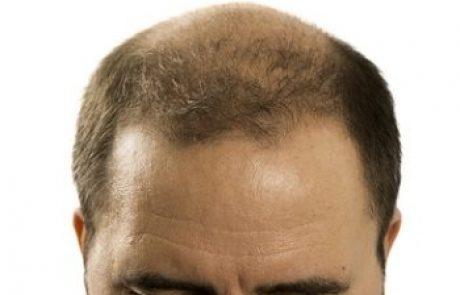 השתלת שיער סינטטי: הדור החדש של השתלות השיער