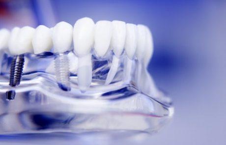 תכנון שיקומי בהשתלת שיניים ממוחשבת: דיוק ויעילות במינימום כאב