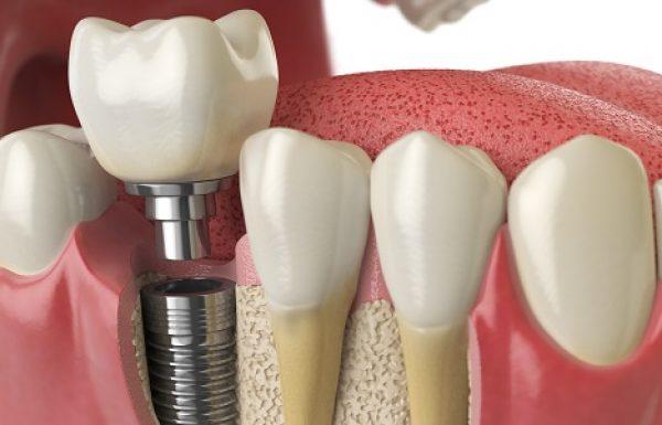 השתלות שיניים ופתרונות למחוסרי עצם: לחסוך זמן, כסף וסיבוכים