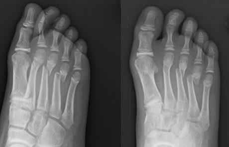 חבלות בכף הרגל: הגורמים ודרכי הטיפול