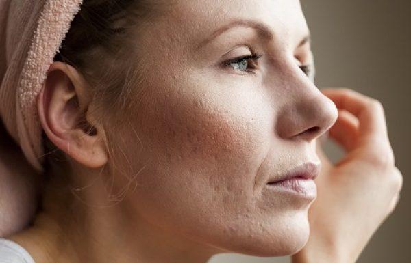 רוזציאה: גורמים אבחון ודרכי טיפול
