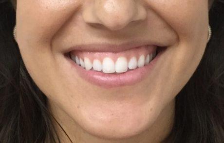 גאמי סמייל-חיוך חושף חניכיים: אבחון וטיפול