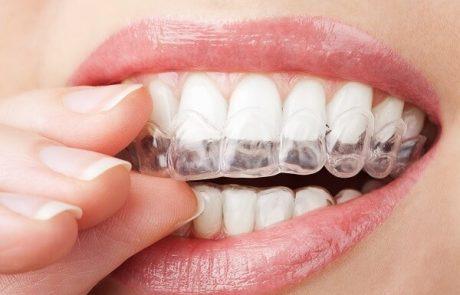 השילוב בין אסתטיקת הפנים ומראה השיניים- לחיוך מושלם