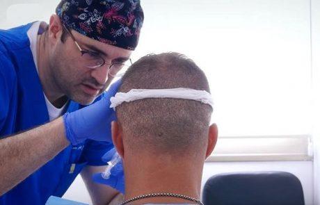 נשירת שיער: הטיפול החדשני באמצעות PRP