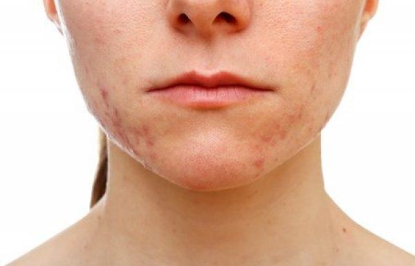 אקנה: הסיבות והטיפולים למחלת העור הנפוצה