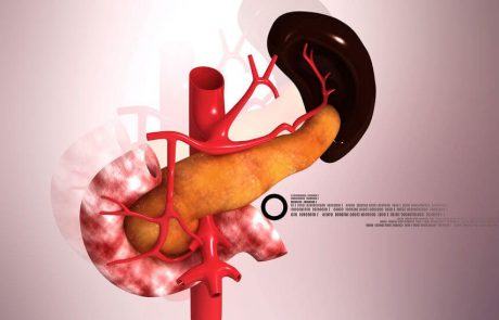 סרטן הלבלב: האבחון והטיפול במחלה