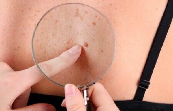נקודות חן: מתי מדובר בסימני אזהרה לסרטן העור?