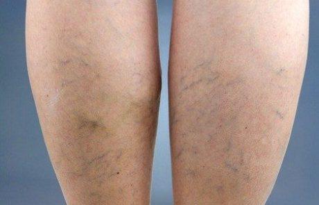 ורידים בולטים ברגליים: טיפול חדשני ללא ניתוח בהזרקת קצף