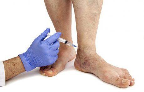 ורידים בולטים ברגליים? כל הטיפולים להעלים אותם