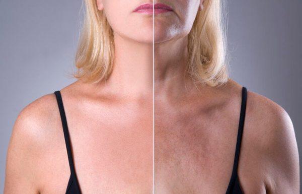 הגיע לישראל: טיפולי הלייזר החדישים לבעיות עור